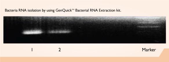 GenQuikTM Bacterial RNA Kit