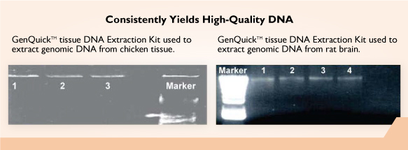 GenQuikTM Tissue DNA Kit